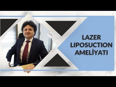 Lazer Liposuction- Op Dr. Onurkan İdacı