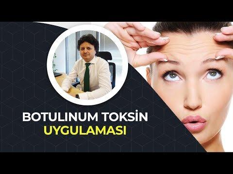 Botulinum Toksin Uygulaması – Op. Dr. Onurkan İdacı