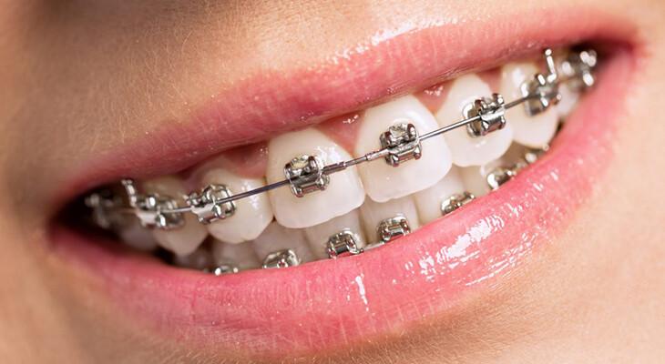Diş teli varken burun estetiği ameliyatı yapılır mı?, 2021 fiyatları, Ankara Estetik Cerrah