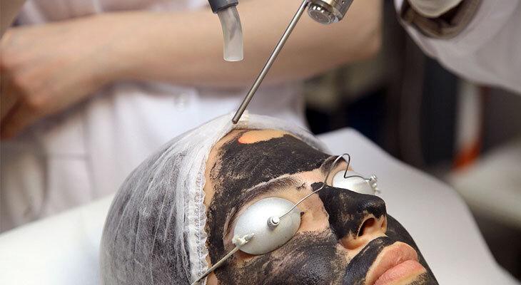 Karbon Peeling, 2021 fiyatları, Ankara Estetik Cerrah