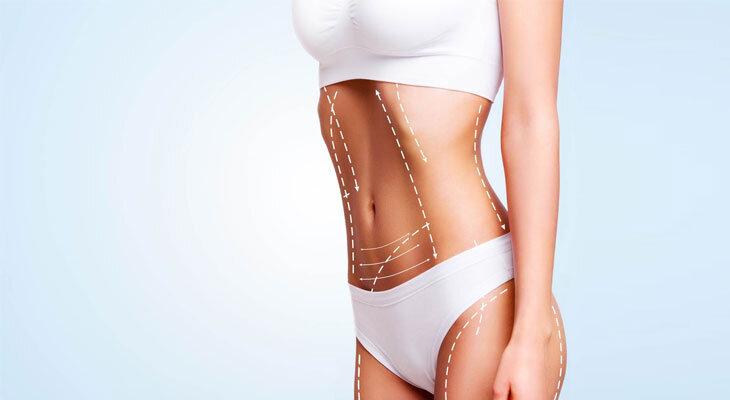 Lazer Liposuction, 2021 fiyatları, Ankara Estetik Cerrah
